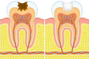 soins dentaires caries