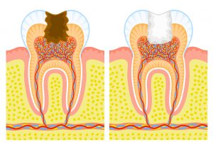 Pulpotomie: la dent est vivante