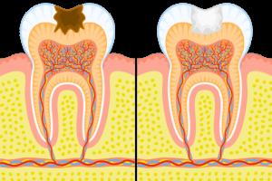 soin dentaire enfant